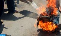 Fallece un argelino que se quemó a lo bonzo en el oeste del país