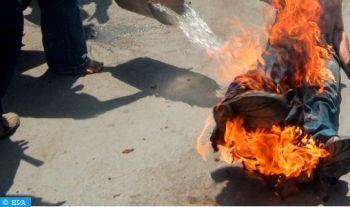 Un Algérien se tue en s'immolant par le feu dans l'ouest du pays